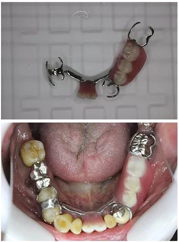 完成した部分入れ歯