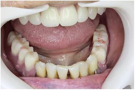 使用中の下の入れ歯