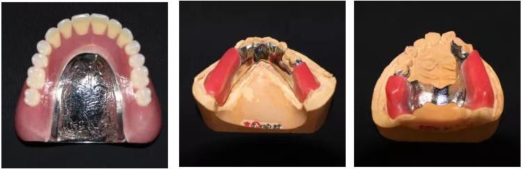 金属床義歯3種