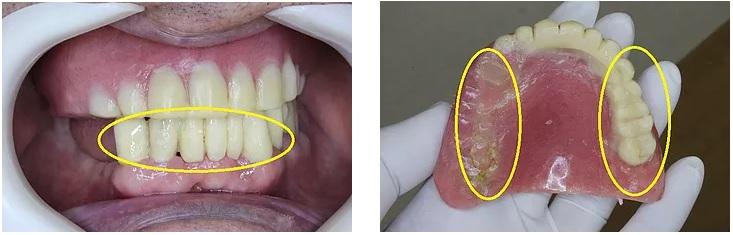 下顎前歯の仮歯、咬合平面を修正した上顎義歯