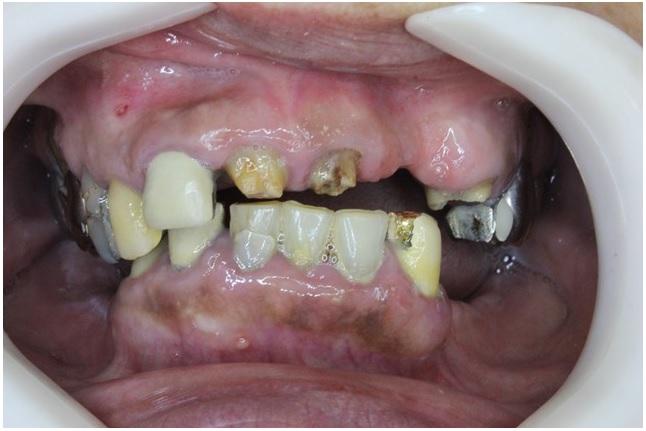 虫歯・歯周病になっている口の中