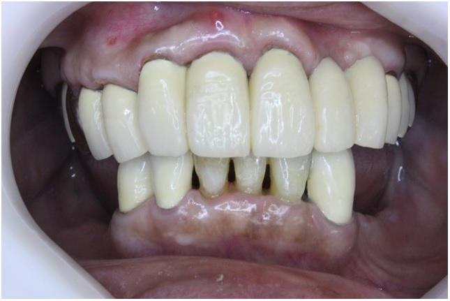 虫歯・歯周病がなおった口の中