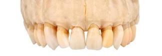 天然歯と骨の模型