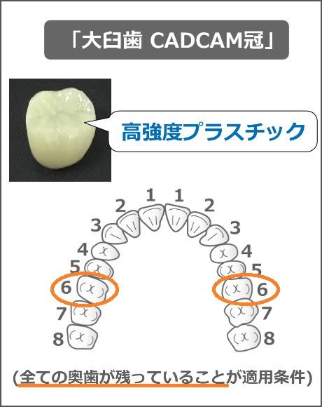大臼歯CADCAM冠